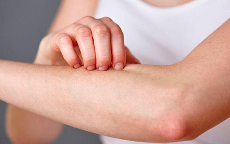 Медикаментозное лечение суставного псориаза питание при воспалении суставов