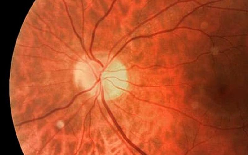 Как использовать установки для восстановления зрения